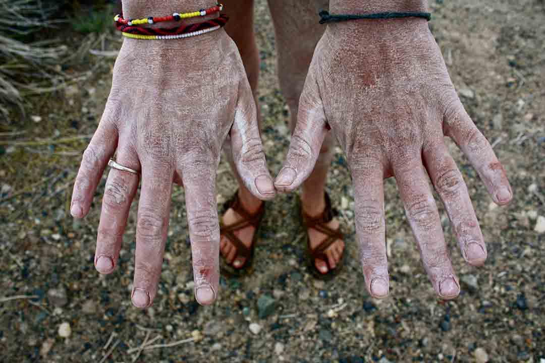 Salt on the hands of a woman who swam in Lake Mono